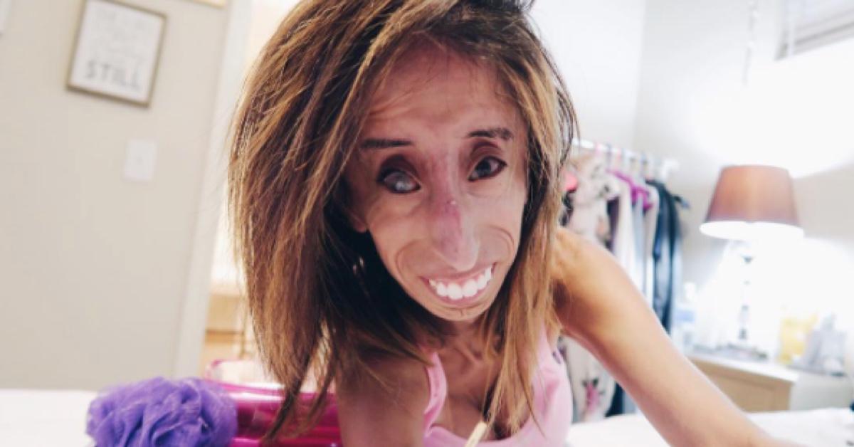 リジー ベラスケス 病気 世界で最も醜いと言われた女性