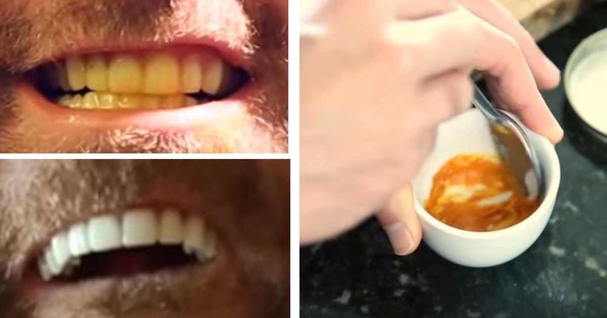 歯磨き ココナッツ オイル
