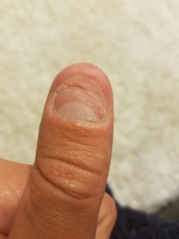 噛む 人 癖 の ある を 爪