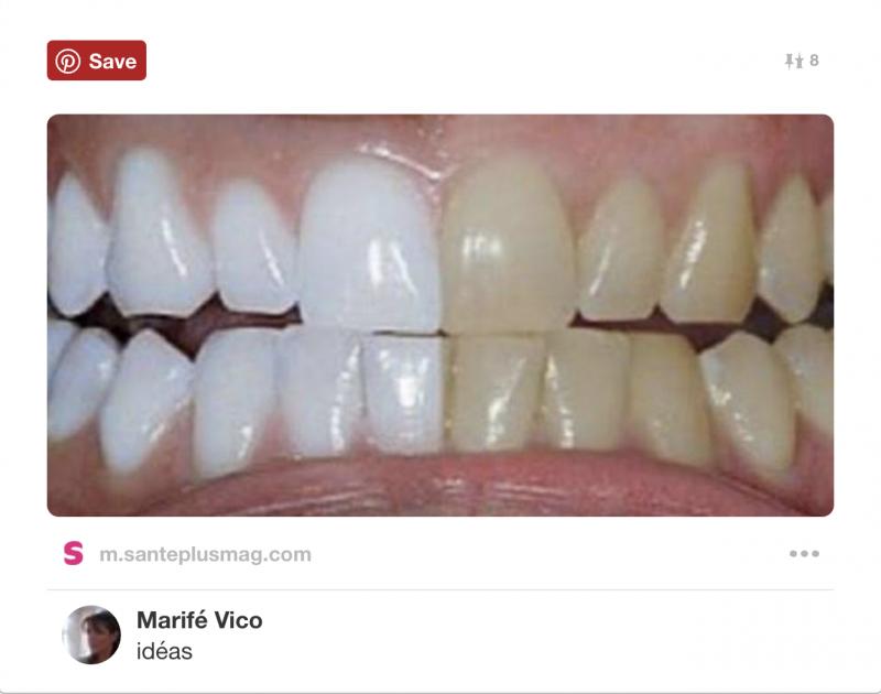 を 白く したい 歯