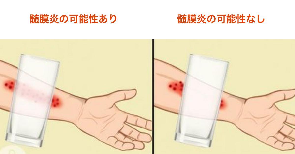 膜 炎 症状 髄