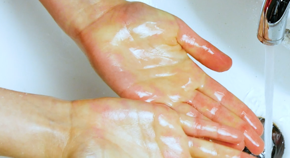 Remove Grease From Your Hands